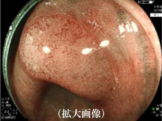 大腸カメラ拡大画像